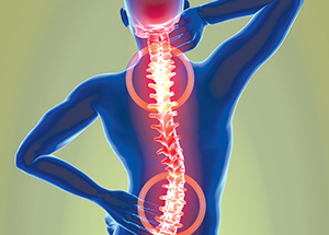 Physical Therapy, Surgery Produce Same Results for Spinal Stenosis